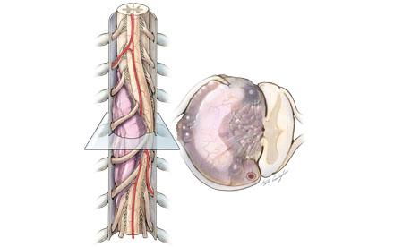 drawing of Myxopapillary ependymoma