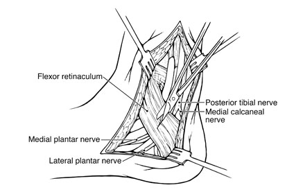 Pen and Ink illustration of Posterior tibial nerve opening